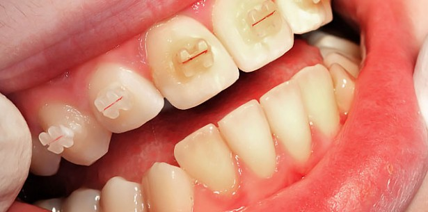 prvi ortodontski pregled