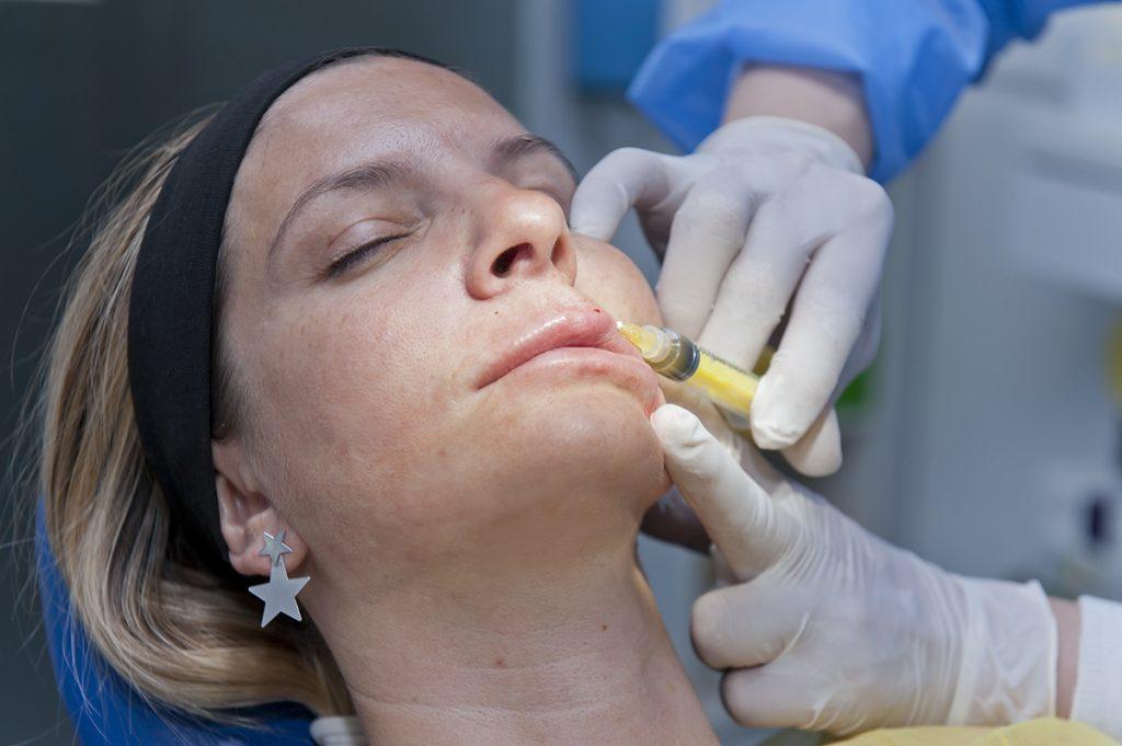stomatološka ordinacija Čeović PRF tretman