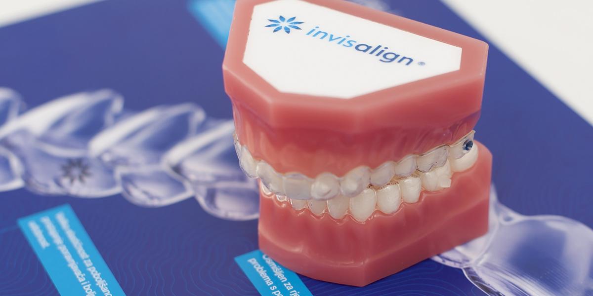 stomatološka ordinacija Čeović Invisalign ortodontska terapija