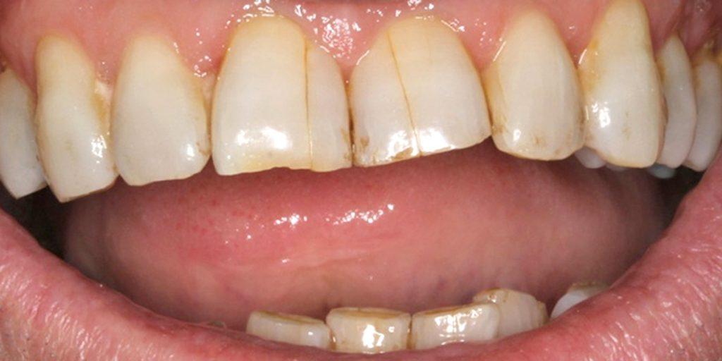 stomatološka ordinacija Čeović - trauma zuba i liječenje traume
